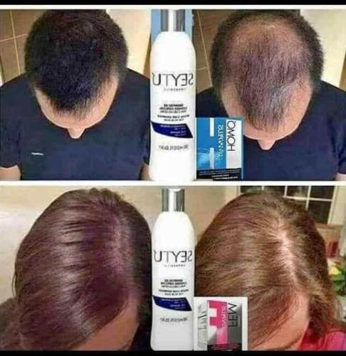 Omnilife Shampoo, and Weak Hair/Cabello Debil